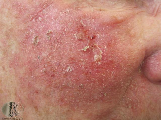 Vitamin B3 And Skin Cancer A Bit More Prevention Mark Raines